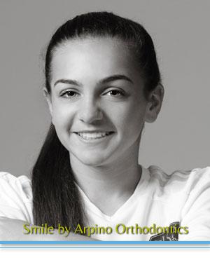 Acceledent Arpino Orthodontics Libertyville IL