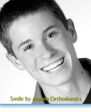 Adolescent Treatment Arpino Orthodontics