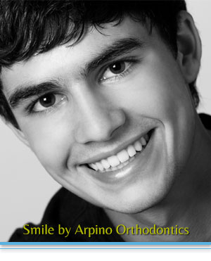 Adult Treatment Arpino Orthodontics