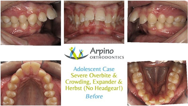Arpino-Orthodontics-in-Libertyville-IL-Before-and-After-Adolescent-Patient-1-Before