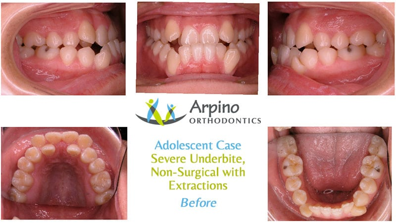 Arpino-Orthodontics-in-Libertyville-IL-Before-and-After-Adolescent-Patient-4-Before