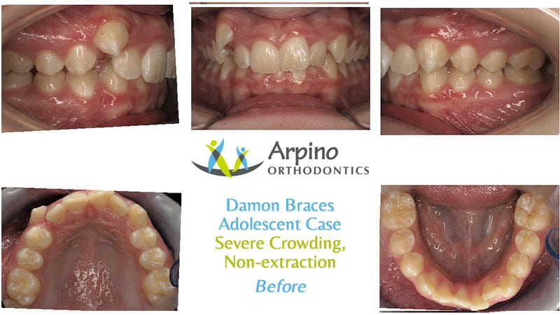 Arpino-Orthodontics-in-Libertyville-IL-Before-and-After-Adolescent-Patient-Damon-Braces-Before
