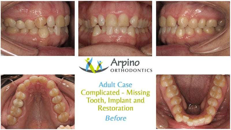 Arpino-Orthodontics-in-Libertyville-IL-Before-and-After-Adult-Patient-1-Before