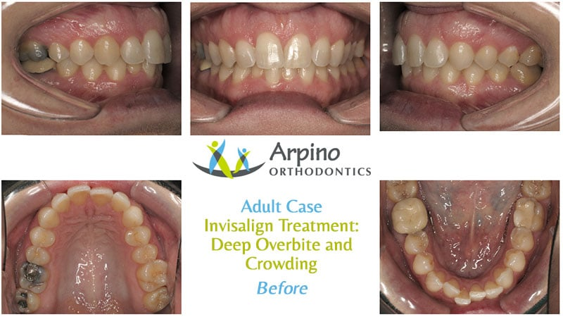 Arpino-Orthodontics-in-Libertyville-IL-Before-and-After-Adult-Patient-3-Before