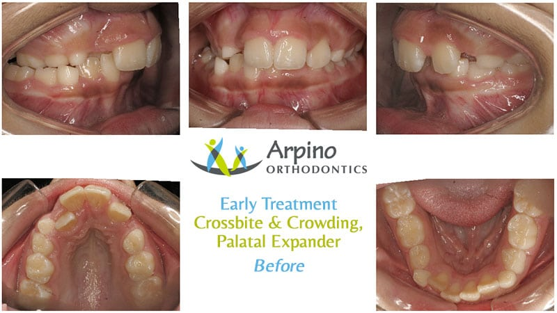 Arpino-Orthodontics-in-Libertyville-IL-Before-and-After-Early-1-Before
