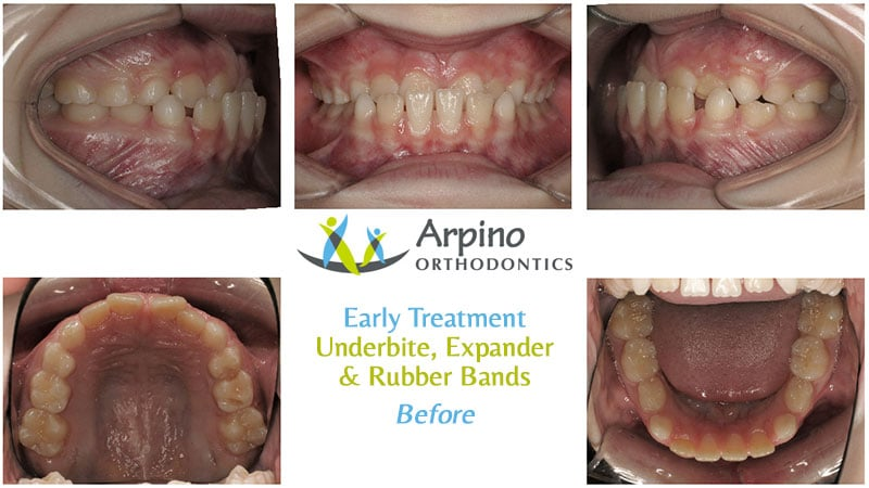 Arpino-Orthodontics-in-Libertyville-IL-Before-and-After-Early-2-Before