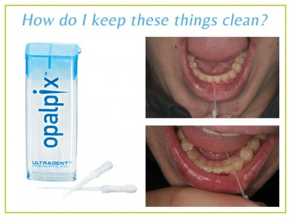 Arpino-Orthodontics-in-Libertyville-IL-recommends-Opalpix-for-Permanent-Retainers