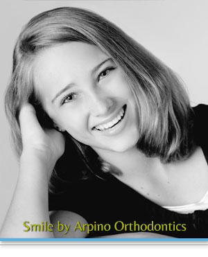 FAQ Arpino Orthodontics Libertyville IL