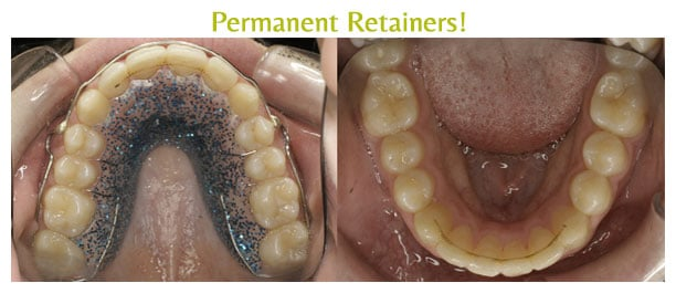 Permanent-Retainers-Before-and-After-Arpino