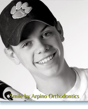 Types of braces Arpino Orthodontics